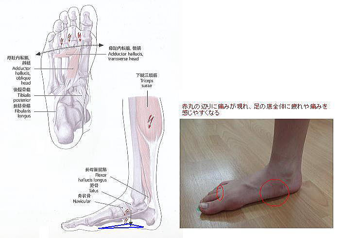 flatfoot1-1