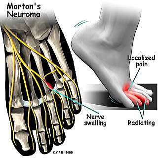 foot_neuroma_symptoms012