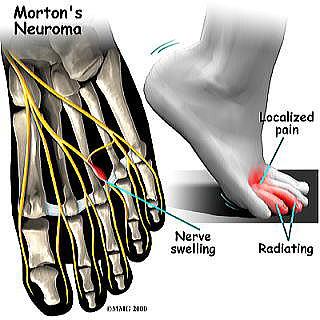 foot_neuroma_symptoms012