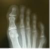 納得しがたい巻き爪の治療