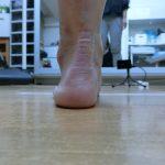 踵の痛みを取る 足底腱膜炎
