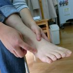 足底腱膜炎ですが足の甲が痛い
