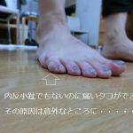 足の小指の痛いタコ(小趾のタコ)