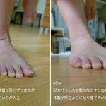 種子骨炎と母趾球の関係