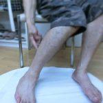 脚が変わりました ふくらはぎの痛み